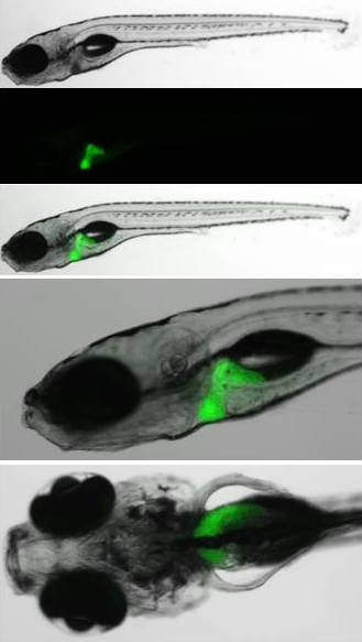 genetics-hemostasis-and-thrombosis