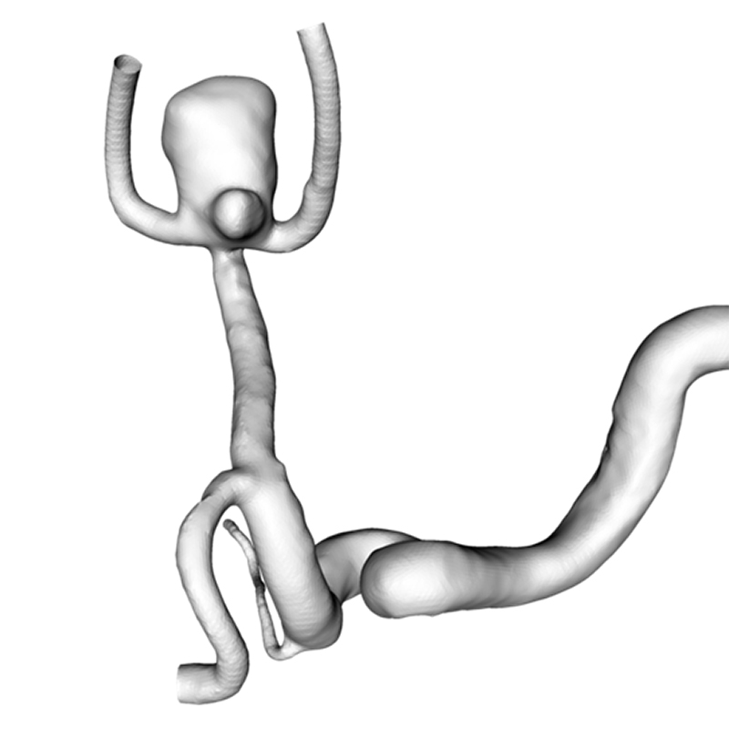 modeling-intracranial-aneurysm-disease-and-management